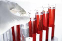 Сдать общий анализ крови