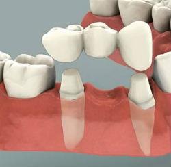 Современные методики ортопедической стоматологии