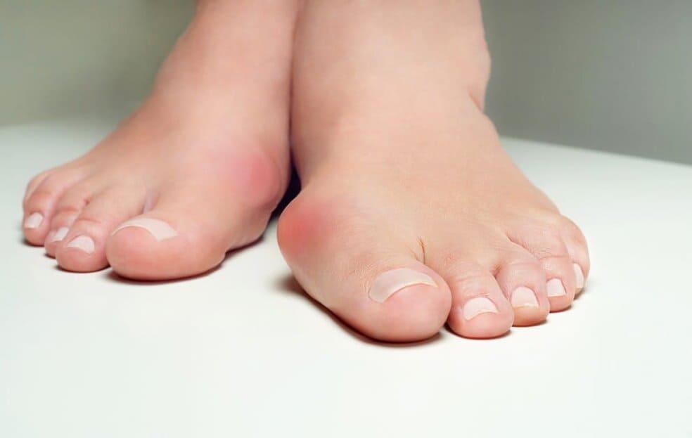valgusnaya-deformaciya